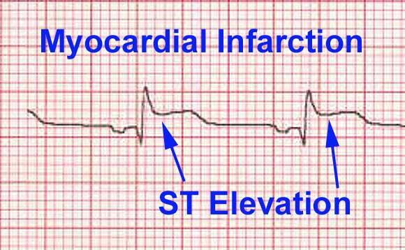 ST-elevationer, da der er forhøjet amplitude imellem S-takken og T-takken.