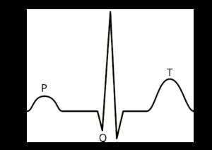 EKG-clean