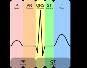 EKG-kompleks-png_