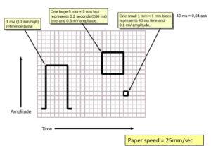 EKG-strimmel forklaring