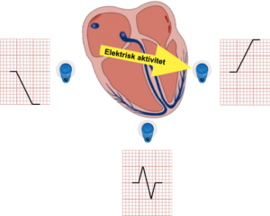Heart-3-point-electrodes-with-ecg-expn-png