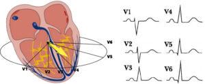 Heart-ventriular-depol-horizontal-leads-ecg-jpg