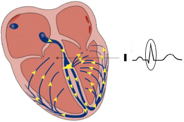 I-QRS-complex