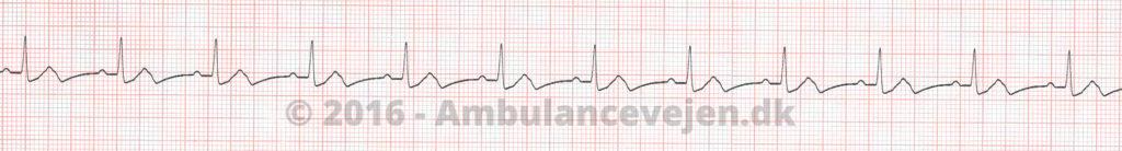 Normal-sinus-rytme-defi-1-1024x138
