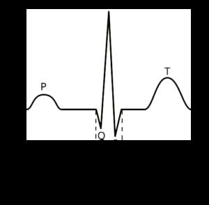 QRS-kompleks-png
