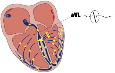 aVL-qrs-complex