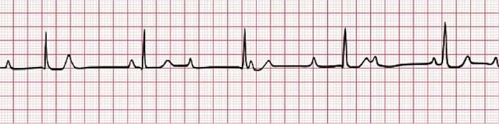 figure-4-third-degree-av-block-complete-heart-block