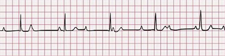 figure-4-third-degree-av-block-complete-heart-block