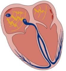 hjerte-default-atriel-depolarisering-png