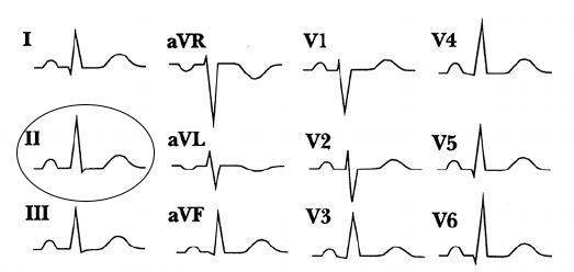 p-wave-morphology-sinus-circle-around-lead-two