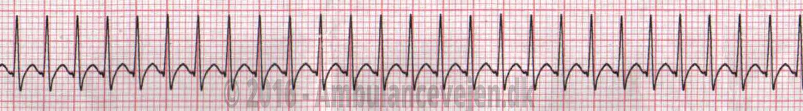 supra-ventricular-tachycardy-defi2