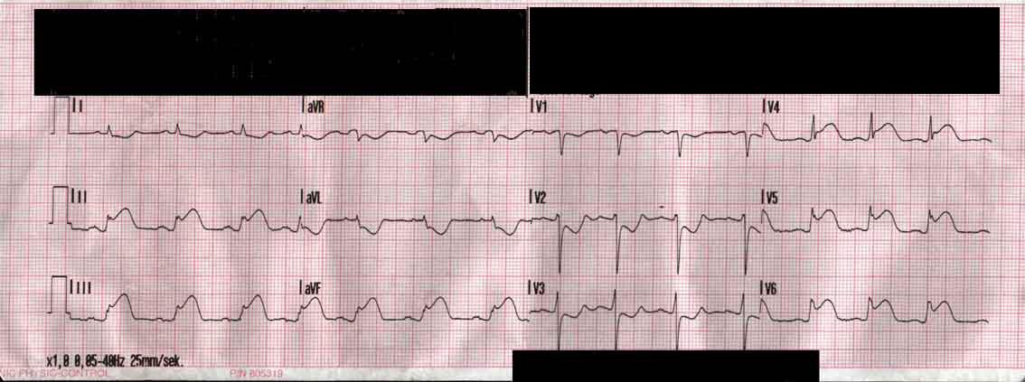 ECG-forvaegsinfarkt-12-lead-png