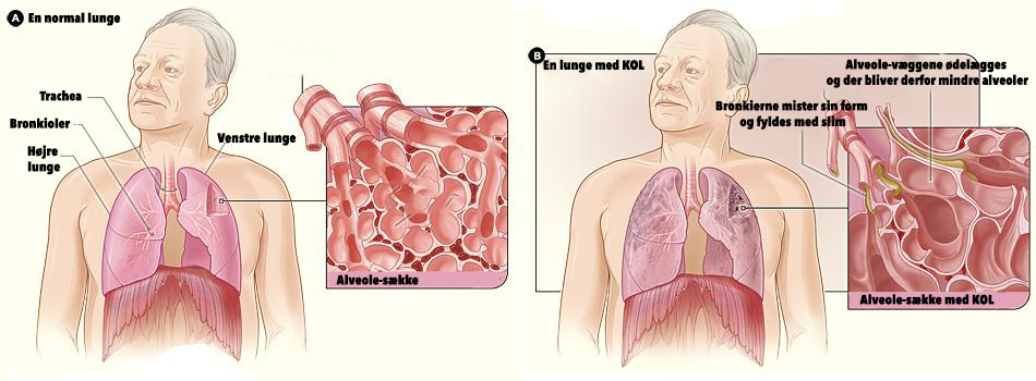 normal-lung-and-lung-with-kol-american-govm-no-copyright-jpg