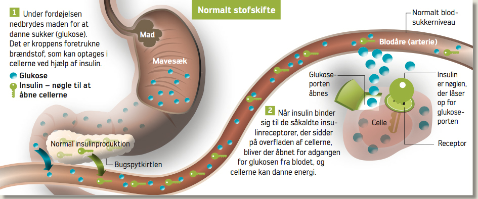 diabetes bugspytkirtlen